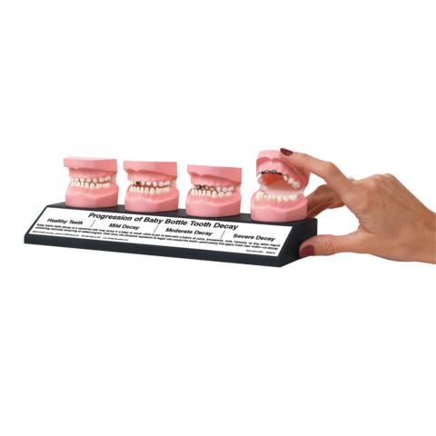 哺乳瓶虫歯4段階モデル