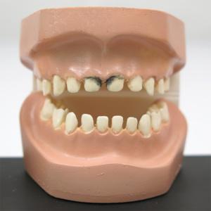 軽度の虫歯