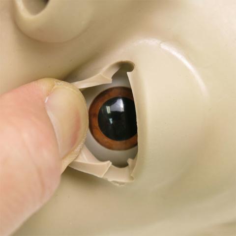 左目:瞳孔が散大した上代 左目:瞳孔が散大した上代