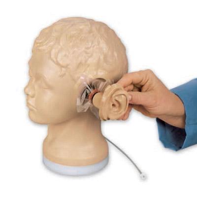 耳介は着脱式,中耳のカートリッジを差し替えて異なる症例の診断ができます