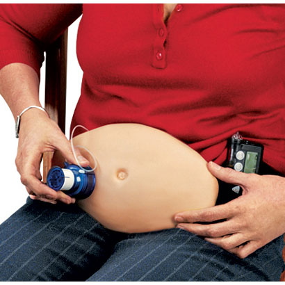 インスリン注射練習用腹部モデル