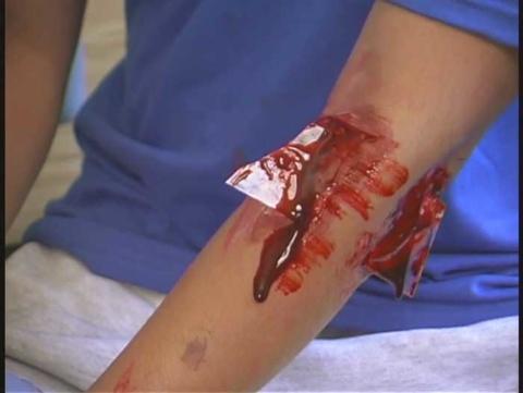 ガラス片による外傷