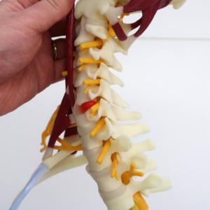 脊髄神経,椎間板ヘルニア