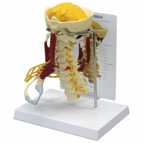 筋付き頚椎モデル