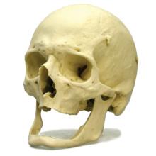 老人頭蓋モデル