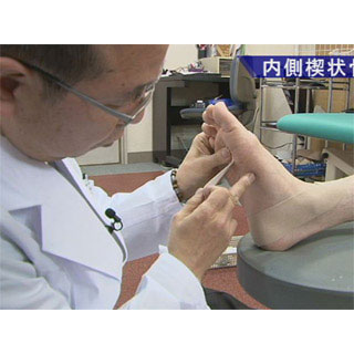 入谷式足底板の基礎 〜「荷重タイプと足部誘導」から「足底板作成の実際」〜
