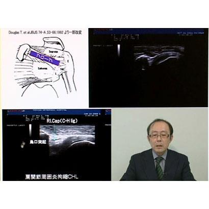 超音波検査入門 <肩・肘>