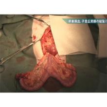 乳腺腫瘍があるイヌの卵巣・子宮全摘出術及び乳房・乳腺腫瘍摘出術