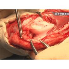 イヌの前十字靭帯断裂の整復法