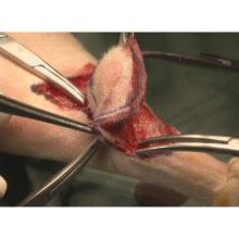 イヌの肥満細胞腫摘出術
