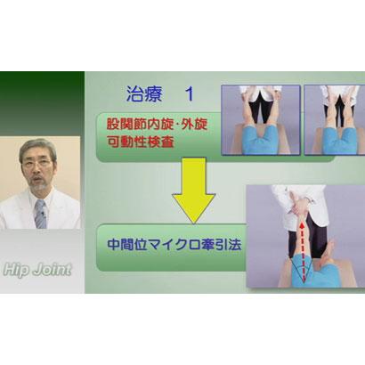 股関節/膝関節の検査と治療
