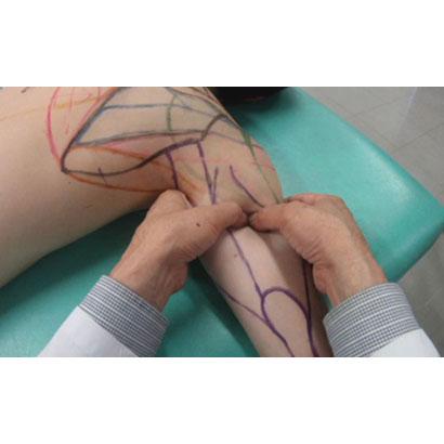 治療的触察・刺激法 < 上肢編 >