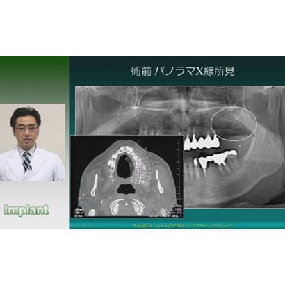 口腔外科医と学ぶ 「 フィクスチャー埋入術 」