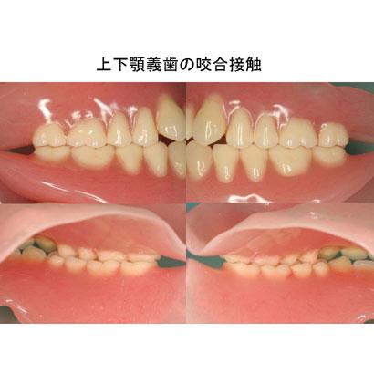 高精度全部床義歯の製作 〜ピエゾグラフィーとFBIテクニック〜