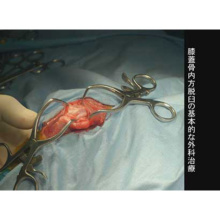 イヌの膝蓋骨脱臼の外科治療