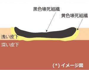 褥瘡,皮膚,皮下の多層化