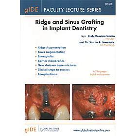 インプラント歯学における歯槽堤および上顎洞への移植術
