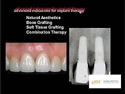 歯槽堤および上顎洞への移植