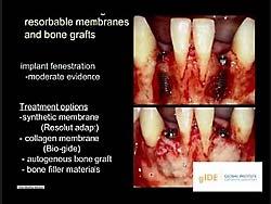 歯槽堤増大術