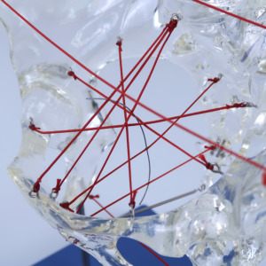 骨盤諸経を糸で示してあります