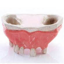 EXSURG. 口腔粘膜模型上顎