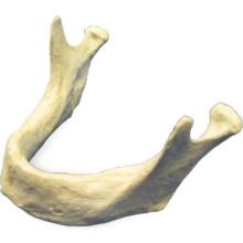 EXSURG. 下顎骨,歯牙なし