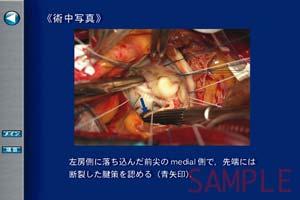 術中写真や心電図などで診断を補強