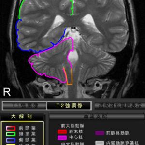 脳大解剖を表示:脳腫瘍,脳出血等の部位特定に便利です。