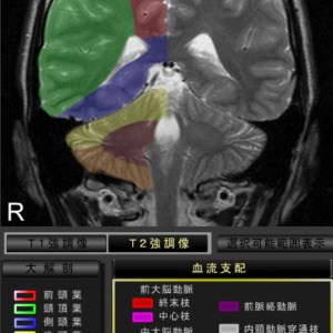 脳血流支配を表示。脳梗塞の責任血管の固定に便利です。*軸状断,冠状断のみ