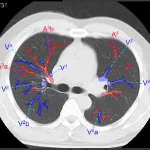 肺血管を表示
