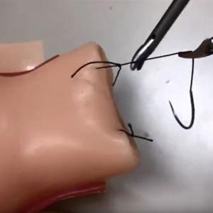 膣断端縫合