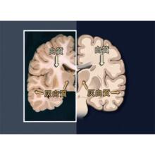 神経系I 中枢神経、高次機能、運動系