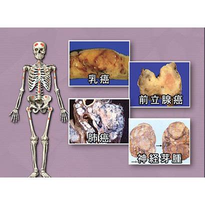 がん 特異性 皮膚・脳・骨軟部腫瘍を中心として