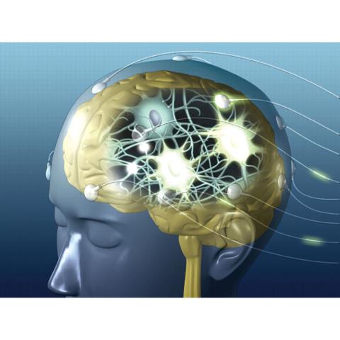 生理機能検査I 脳波検査・筋電図検査