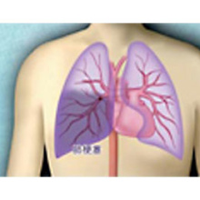 肺循環障害