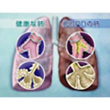慢性呼吸不全と包括的呼吸リハビリテーション