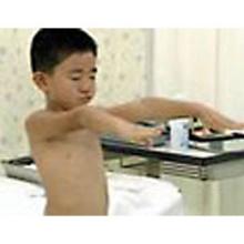 幼児(II) 心血管・腹部・生殖器・筋骨格・神経系