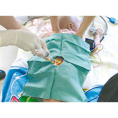 骨髄穿刺・腰椎穿刺を受ける子どもへの援助