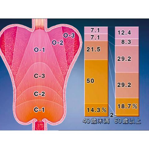 高齢者の生理機能2 消化・腎 - 排泄系