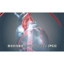 心臓のリハビリテーション