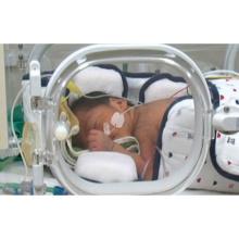 低出生体重児とその家族への看護事例