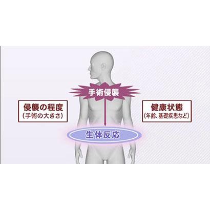 Vol.1 周術期看護の基礎知識