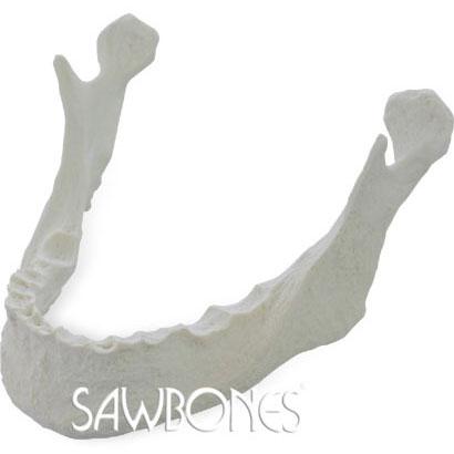 無歯下顎モデル,抜歯後凹凸付