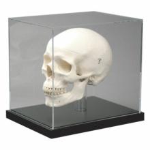 頭蓋骨展示ケース